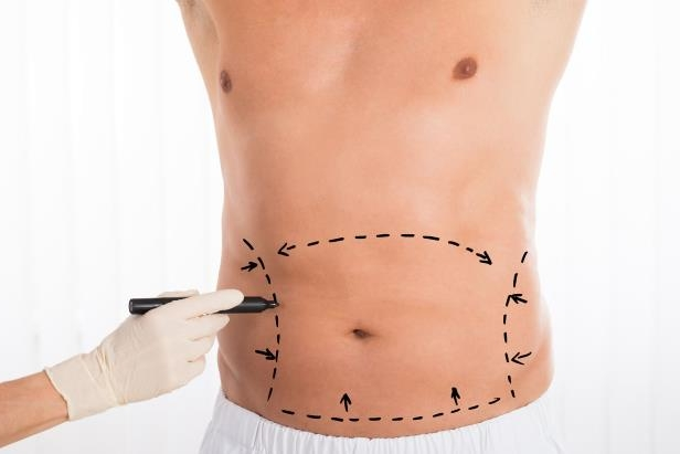 Close-up Of Person Hands Drawing Correction Lines On Stomach