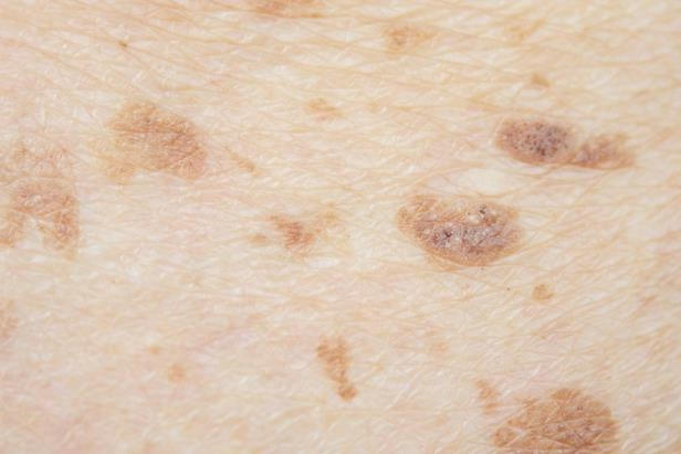Slide 4 of 9: Dark marks or <a href='http://www.rd.com/health/beauty/freckles-skincare/1'>unusual freckling on the skin</a> aren't just a sign that you should see a dermatologist—they could be a sign of a rare and more aggressive form of breast cancer called <a href='https://www.cancer.gov/types/breast/ibc-fact-sheet'>inflammatory breast cancer</a>. If you get a freckle that's soon joined by more, get to a doctor quickly for a screen.