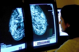 Breast Cancer May Return Even 20 Years Later