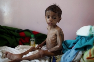 Yemen faces 'world's biggest famine'