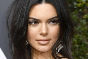 Kendall Jenner Addresses Her Golden Globes Acne: 'Never Let That S**t Stop You'
