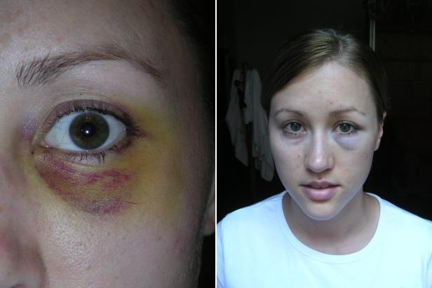 a close up of a man and a woman looking at the camera: Images of Colbie Holderness after an alleged incident with her then-husband Rob Porter in the early 2000s.