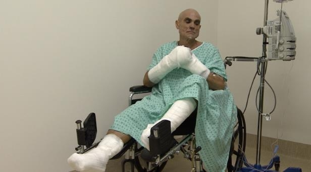 a person sitting in a room: Roberto Zanda, at the Whitehorse hospital, suffered severe frostbite during the Yukon Arctic Ultra.