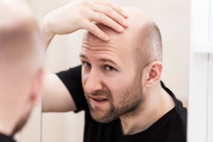Could A Cure For Male Pattern Baldness Be On The Horizon?