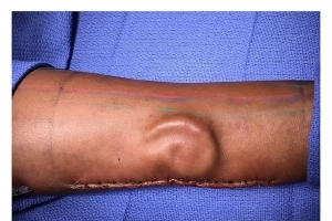 Doctors Grow Replacement Ear Inside Patient's Arm