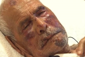 Grandfather, 92, beaten with brick and told to 'go back to your country,' reports say