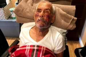 91-year-old man beaten with a brick asks God's forgiveness for his attacker