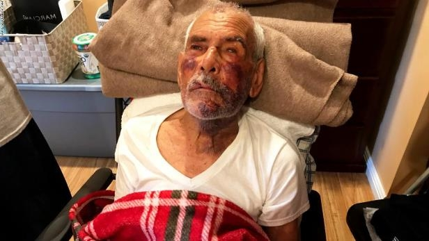 Rodolfo Rodriguez of Mexico told CNN he was visiting family in The Willowbrook neighborhood of Los Angeles when he was attacked by a woman. A witness says she saw a woman beating Rodriguez with a small concrete block she held in her hand. His nephew says he suffered a broken jaw, broken cheek, two broken ribs and countless bruises.