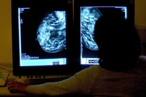 Computer glitch causes 1,700 Scottish women to miss breast cancer screening