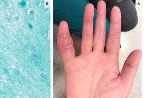 A Woman's Swollen Pinky Finger Turned Out to Be a Rare Deadly Infection