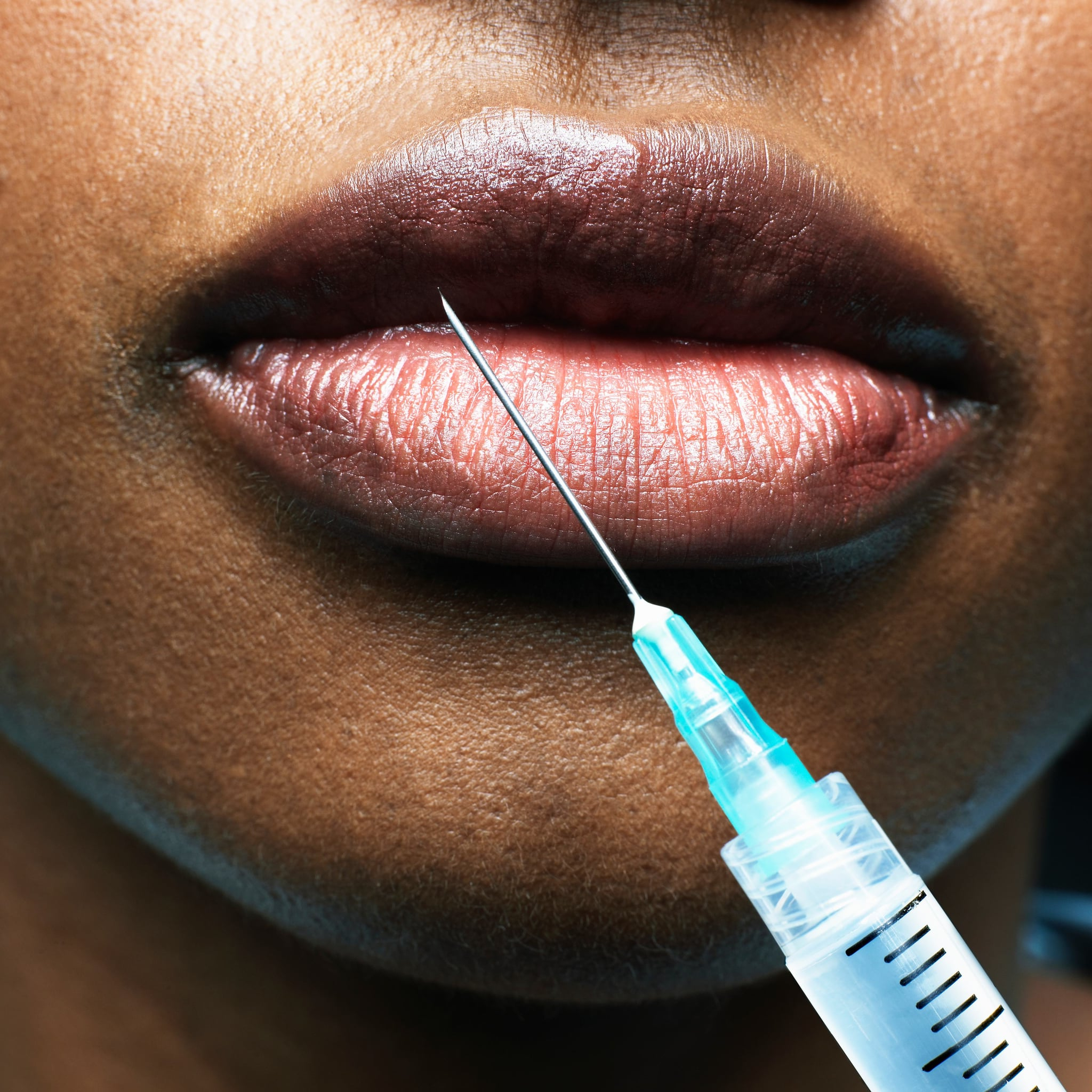 Style: 9 things I wish I'd known before getting Botox - PressFrom