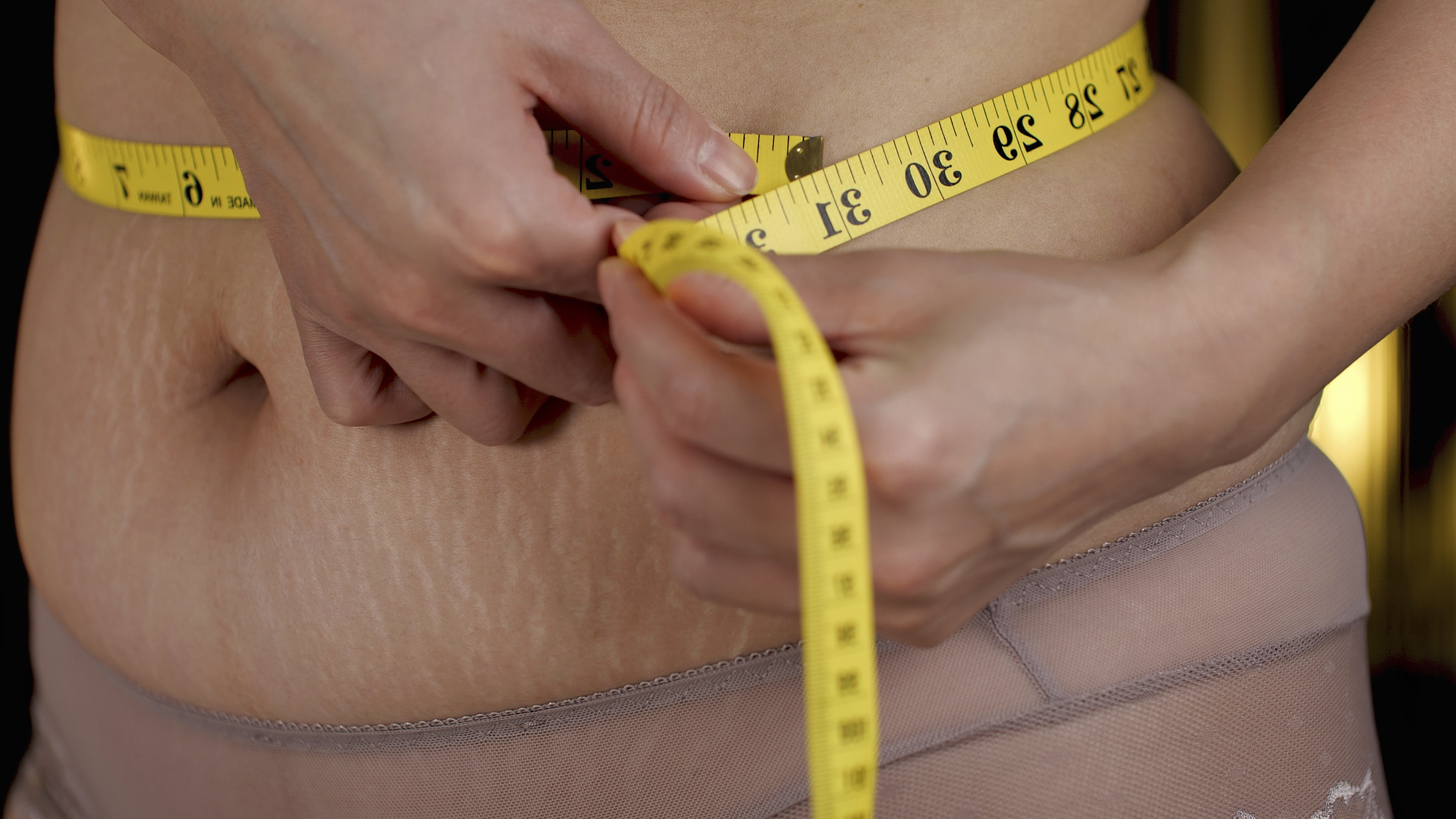 Health Fitness Stretch Marks And Weight Loss Can Be A Real Battle