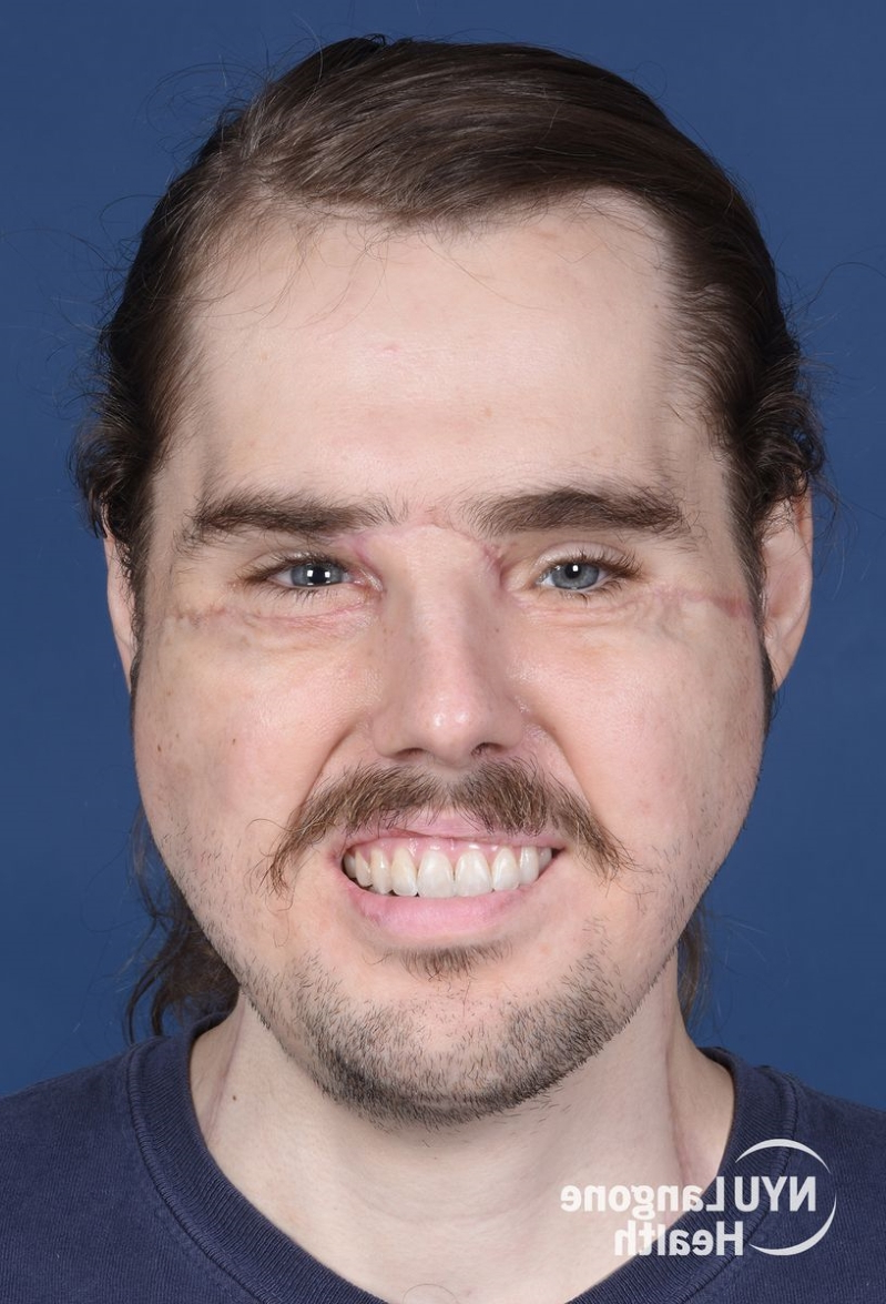 Inside a 26-Year-Old Man's History-Making Face Transplant