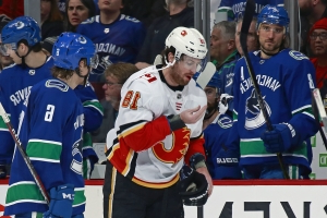 Sport  Calgary Flames  James Neal has teeth fly out of mouth after he s high -sticked - PressFrom - US faaf4f81b
