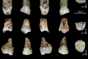 Nearly 240,000-year-old ancient teeth could reveal previously unknown human ancestor from Southern China