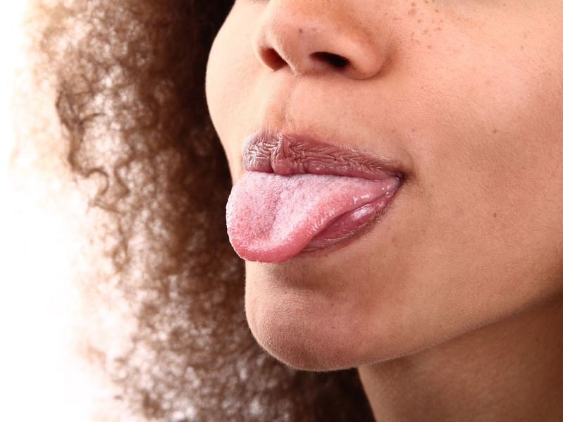 Health: If You Have Bumps on Your Tongue, Here's What They