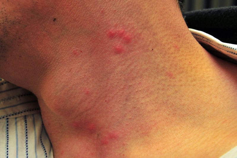Health How To Identify Bed Bug Bites And How To Treat Them