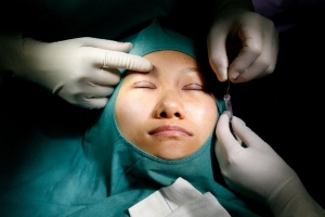 Over half of plastic surgery clients in China are under 28