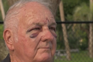 'Attacked by some crazy guy': 80-year-old man beaten on morning walk in Daytona Beach