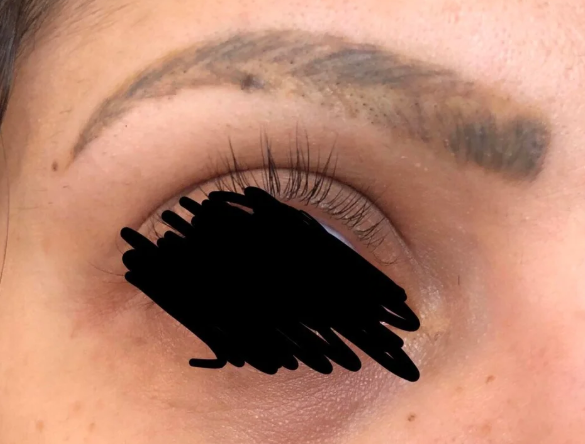 Health & Fit: These Microblading Gone Wrong Stories On