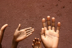 See What Children's Rashes Look Like on Darker Skin With 'Brown Skin Matters'