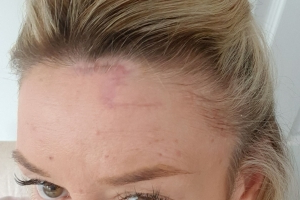 Woman left with 'Harry Potter' scar after skin cancer removed from forehead