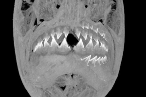 Piranha teeth are even more incredible than we thought