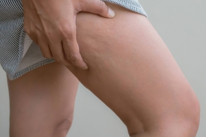 The 11 Biggest Myths About Cellulite You Need to Stop Believing