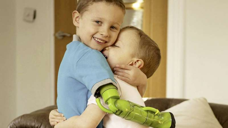 Boy, 5, gets 'Hulk'-inspired prosthetic arm, can finally give younger brother hug
