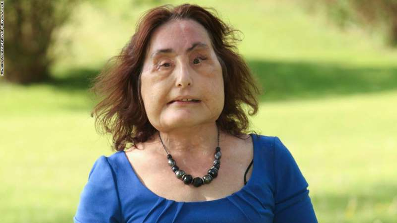 a close up of Connie Culp: Connie Culp, 48 posing in the local park on May 11, 2011 in Wintersville, Ohio.America's first face transplant patient Connie Culp has set out on her second chance on life after her ground breaking surgery. Culp's former husband, Thomas G.