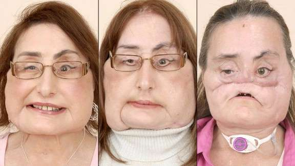 Connie Culp, Connie Culp posing for the camera: More than two years after undergoing a landmark, near-total face transplant at the Cleveland Clinic, Connie Culp said she was happy with the transformation.