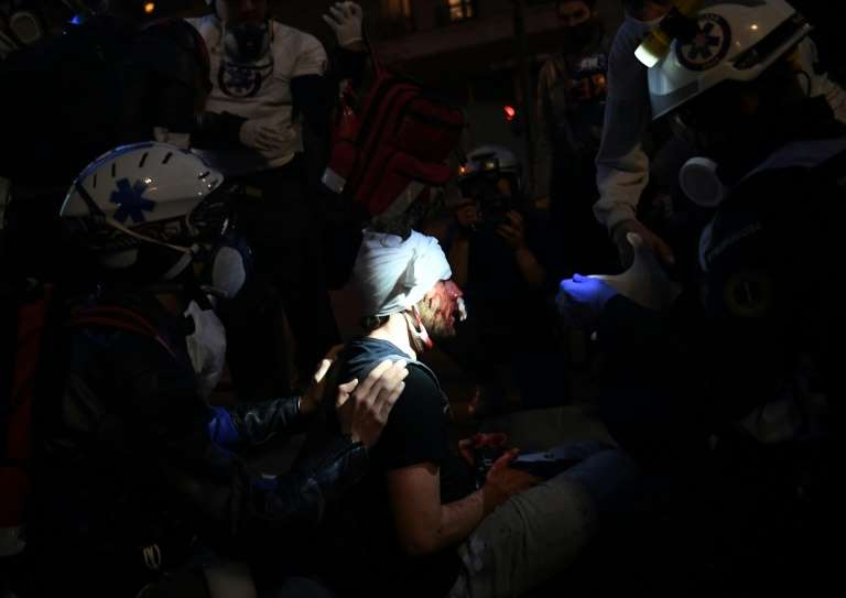 a group of people in a dark room: Medics tend to Ameer Alhalbi after he was injured at a Paris rally against a 'global security' draft law, which would criminalise publication of images of on-duty French police officers