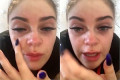 A woman temporarily went blind after a salon used nail glue to apply her lash extensions