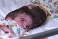 Twins conjoined by skulls separated after 50 hours of operations